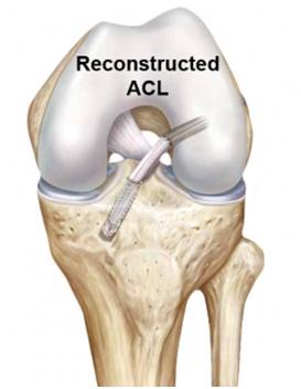 Best orthopaedic knee  surgeon cheshire