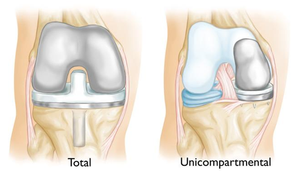 Hip and knee surgeon in cheshire