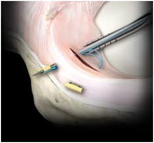 Best orthopaedic knee  surgeon Manchester