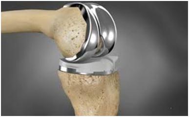 knee surgeon in cheshire