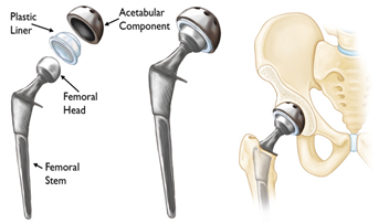 Best Hip and knee surgeon in cheshire